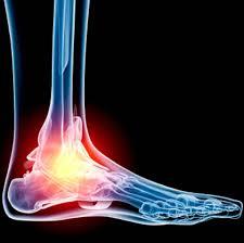 orthotic foot scan cambridge